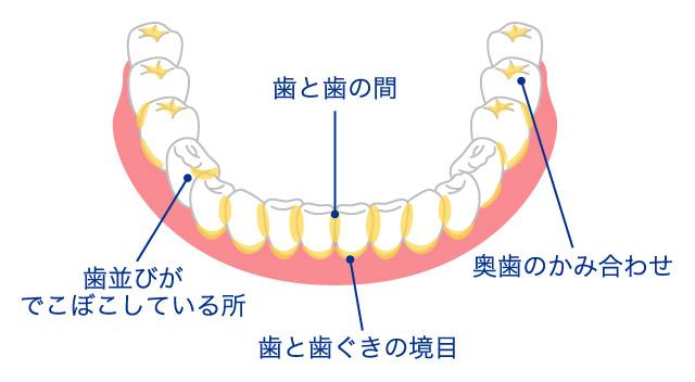 歯垢が残りやすい場所をチェック