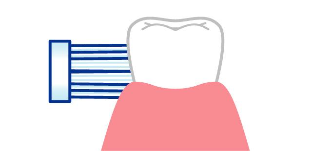 ハブラシの毛先を歯と歯ぐき(歯肉)の境目、歯と歯の間に、きちんとあてる
