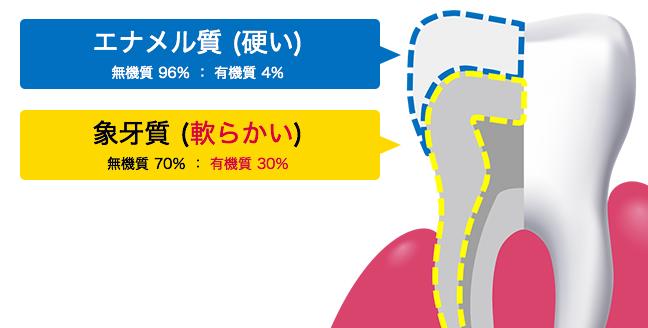 大人ムシ歯とは|歯の健康基礎知識|ライオン−クリニカ